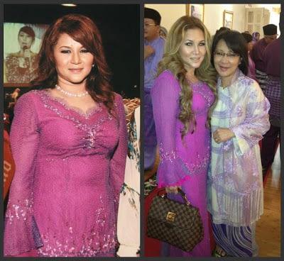 Testimoni Slim Diet 2: Hilang 10kg Dan Dagu Berlapis Pun Hilang..